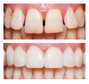 Rebuild Your Smile With Veneers